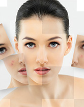 chemical peels after