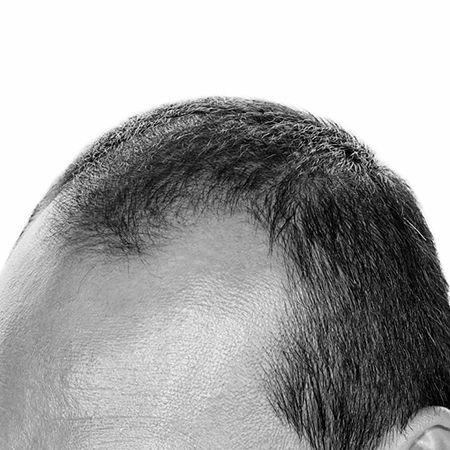 hairtransplantsurgery