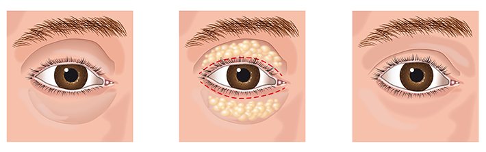Eye bag removal surgery