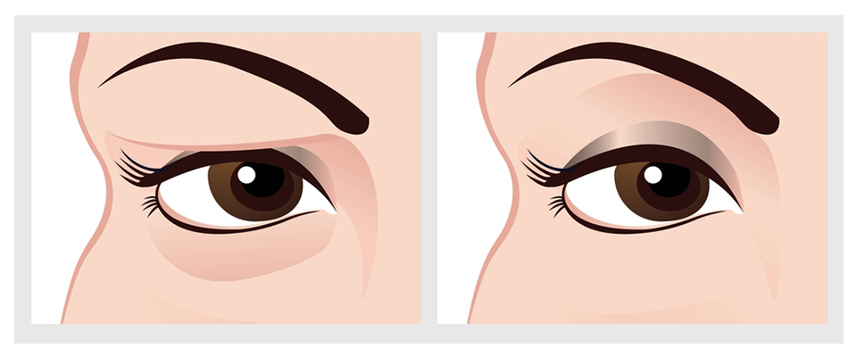 eyelid-surgery-blepharoplasty-uk