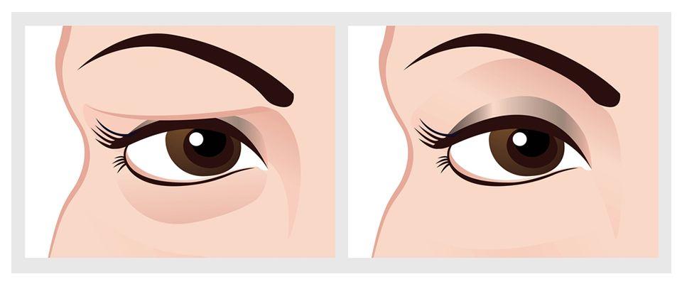 eyelid-surgery-blepharoplasty-uk
