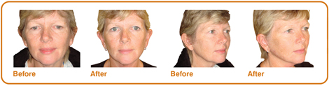 facelifts-before_and_afters