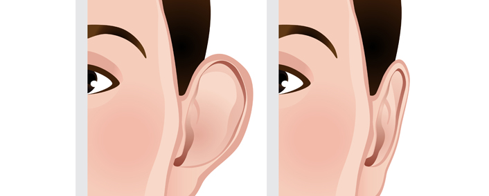 Ear Reshaping