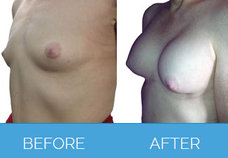 Breast Enlargement Surgery Before and After