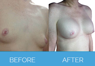 Breast Enlargement Surgery1