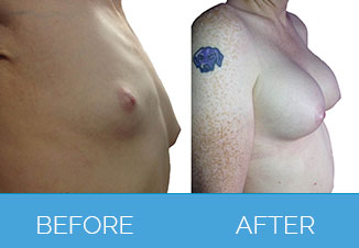 Breast Augmentation Beafore and After