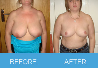 Breast Uplift Procedure Before and After
