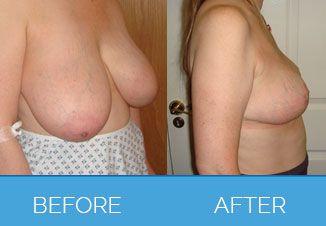 Mammoplasty1