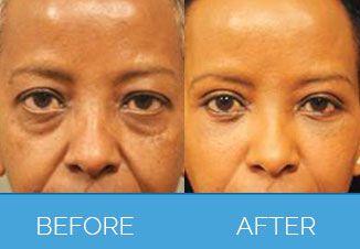facial implants1