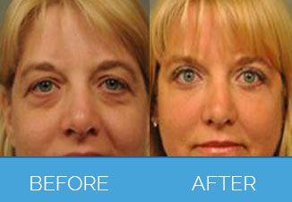 facial implants12