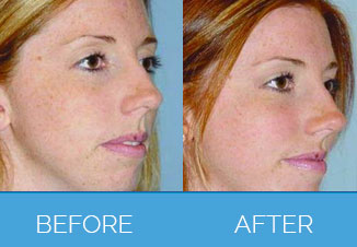 facial implants13