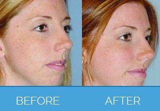 facial implants13