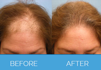 Before and After Female Hair Transplant1