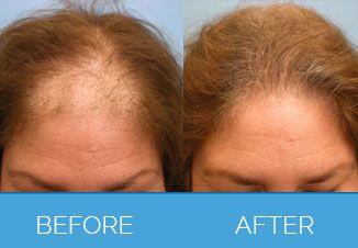 Hair Transplant1