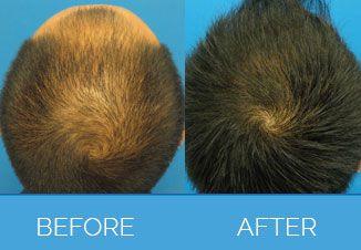 Hair-TransplantP01