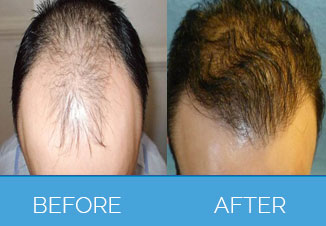 Hair-Transplant-Surgery-Leeds