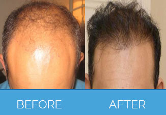 Hair-Transplant-Surgery-Manchester