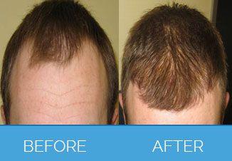 Hair-Transplant5