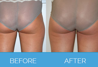 Laser Lipolysis - Before and After Back Side