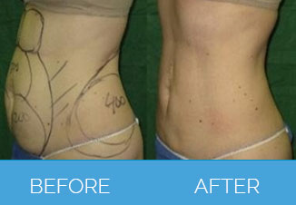 liposuction before after 1