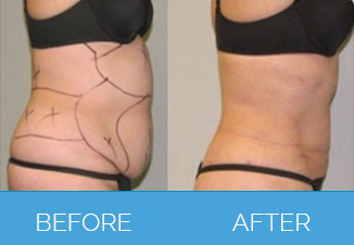 Liposuction1.3