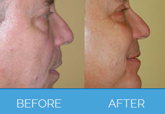 Male Facelifts2
