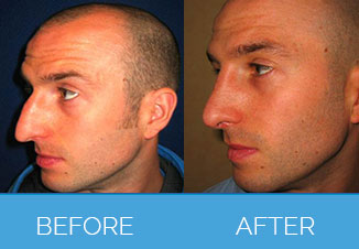 nose correction3