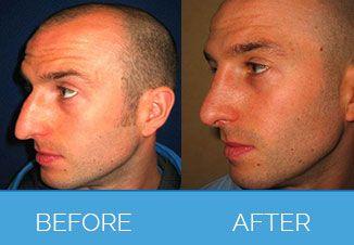 nose correction3