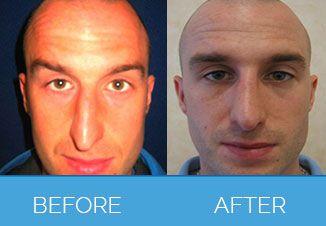 nose correction4