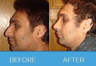 nose correction1