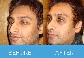 nose correction2