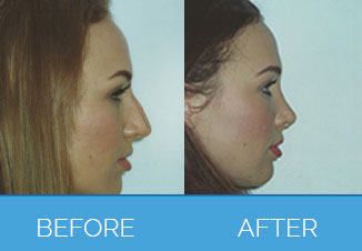 Nose Correction1