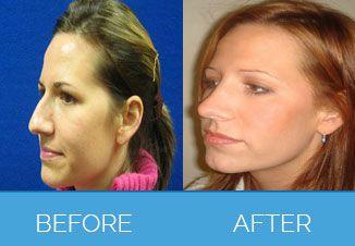 Nose Correction Surgery11