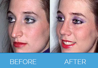 Nose Correction Surgery3