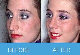 Nose Correction Surgery3