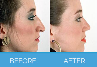 Nose Correction Surgery4