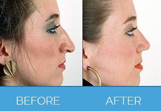 Nose Correction Surgery4