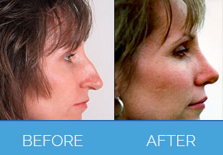 Nose Correction Surgery6