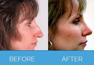 Nose Correction Surgery6