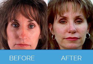 Nose Correction Surgery5