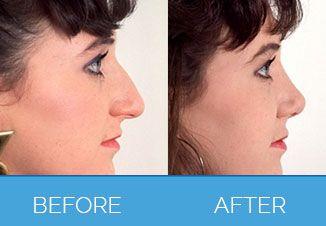 Nose Correction Surgery8