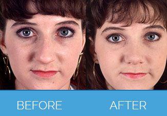 Nose Correction Surgery7