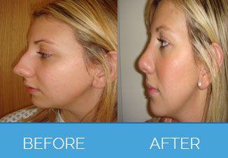 Nose Correction Surgery10