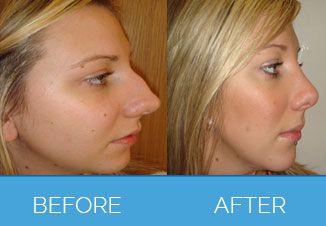 Nose Correction Surgery9