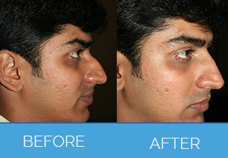 Nose Reshaping1