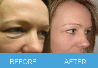 Eyebag Removal Surgery1