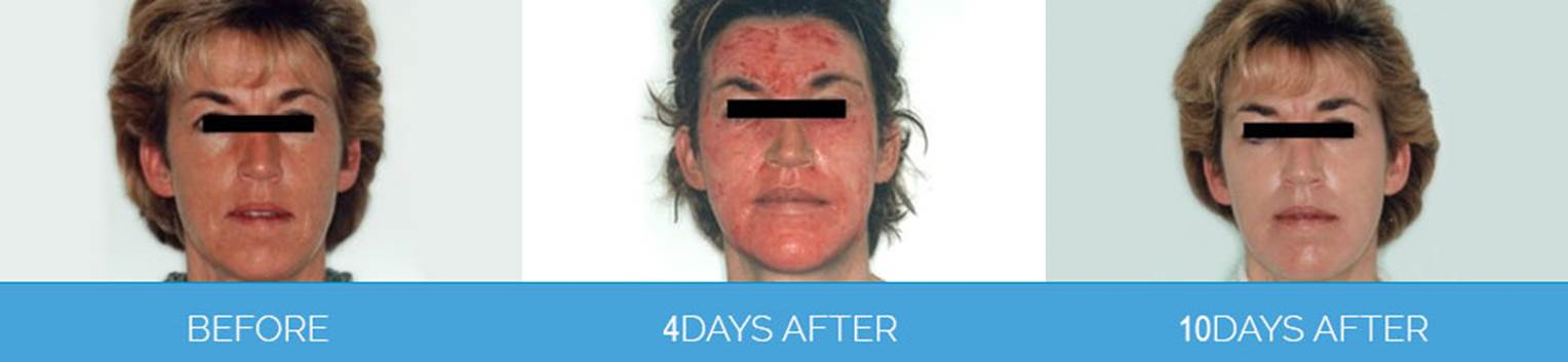 Laser Skin Rejuvenation1