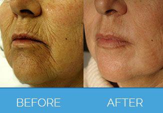 Laser Skin Rejuvenation2