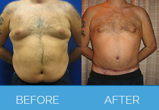 Before and After Male Tummy Tuck2
