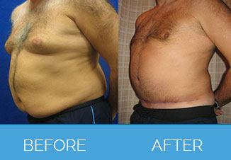 Before and After Male Tummy Tuck1